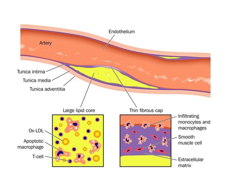 Associated to coronary artery disease cad psoriasis treatments